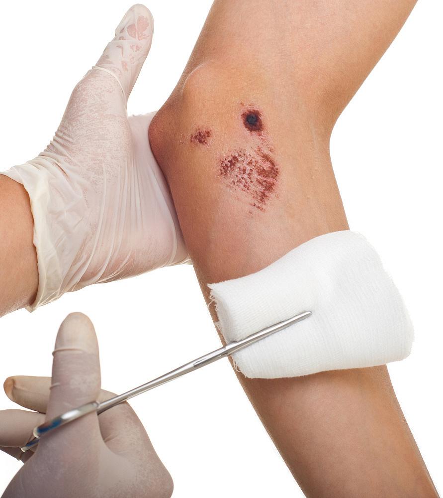 Jak opatrywać rany?